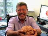 L'estimulació cerebral profunda alleuja els símptomes del Parkinson